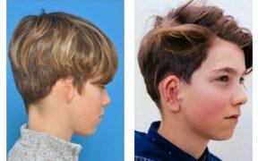 Deze foto's tonen Lars, voor en na zijn oorschelpreconstructie © UZ Leuven