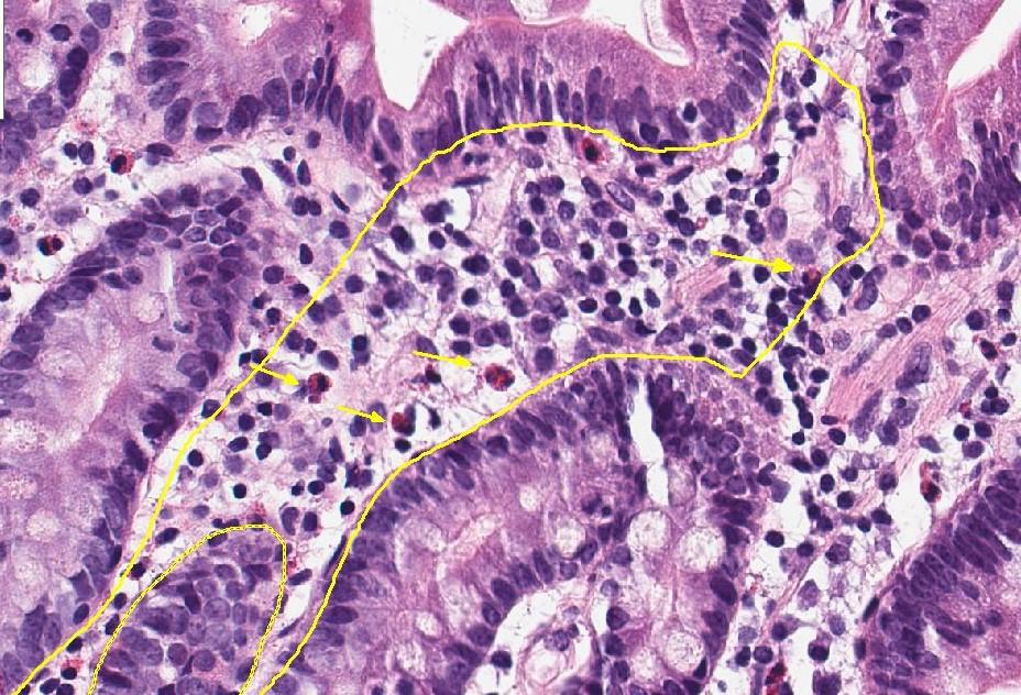 Ontstekingscellen in de twaalfvingerige darm (© UZ Leuven)